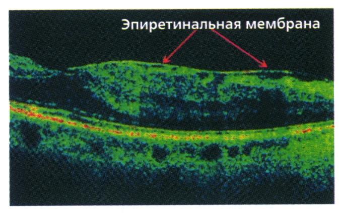 эпи мембрана