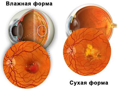 макулодистрофия