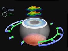Преимущества оборудования для лазерной коррекции зрения
