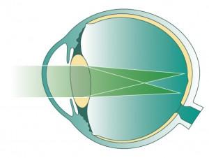 Астигматизм глаза. Лечение астигматизма